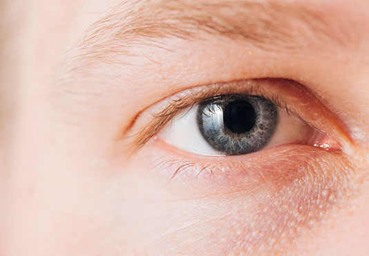 Portland Myopia Control